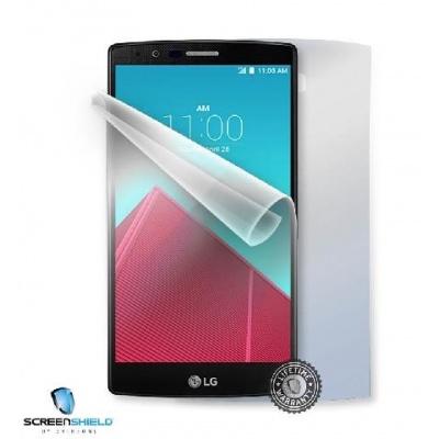 ScreenShield fólie na celé tělo pro LG H635 G4 Stylus